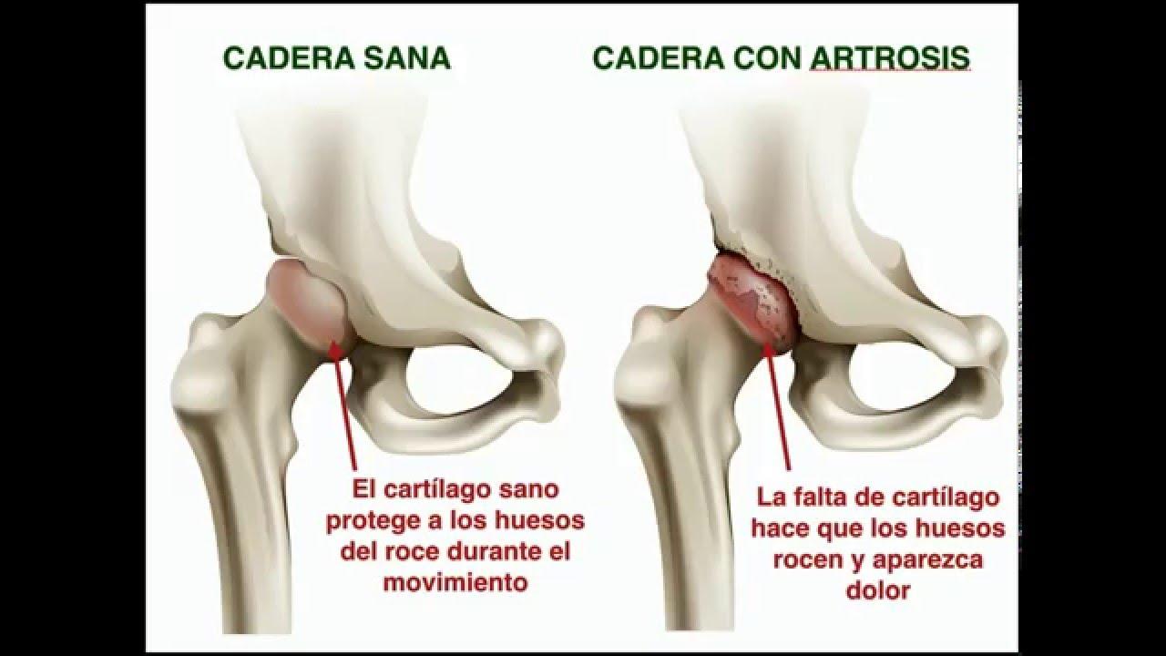 Hermosa Anatomía Dolor De Cadera Galería - Anatomía de Las ...