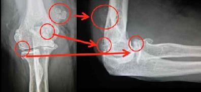Imagen diagnóstica de artrosis de codo lateral y frotal