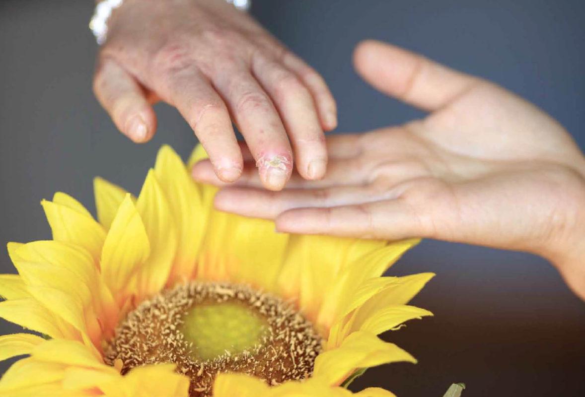 Esclerodermia: ¿En qué ayuda la Apiterapia?