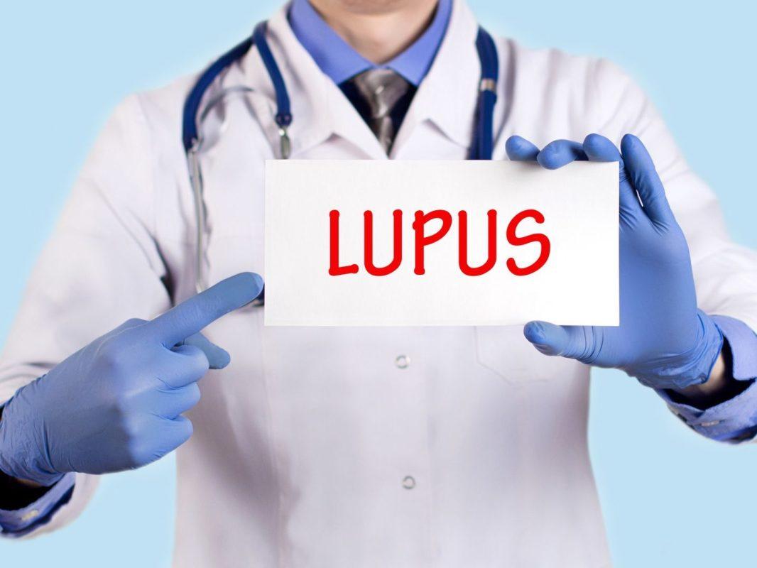 Lupus Eritematoso ¿En qué ayuda la apiterapia?