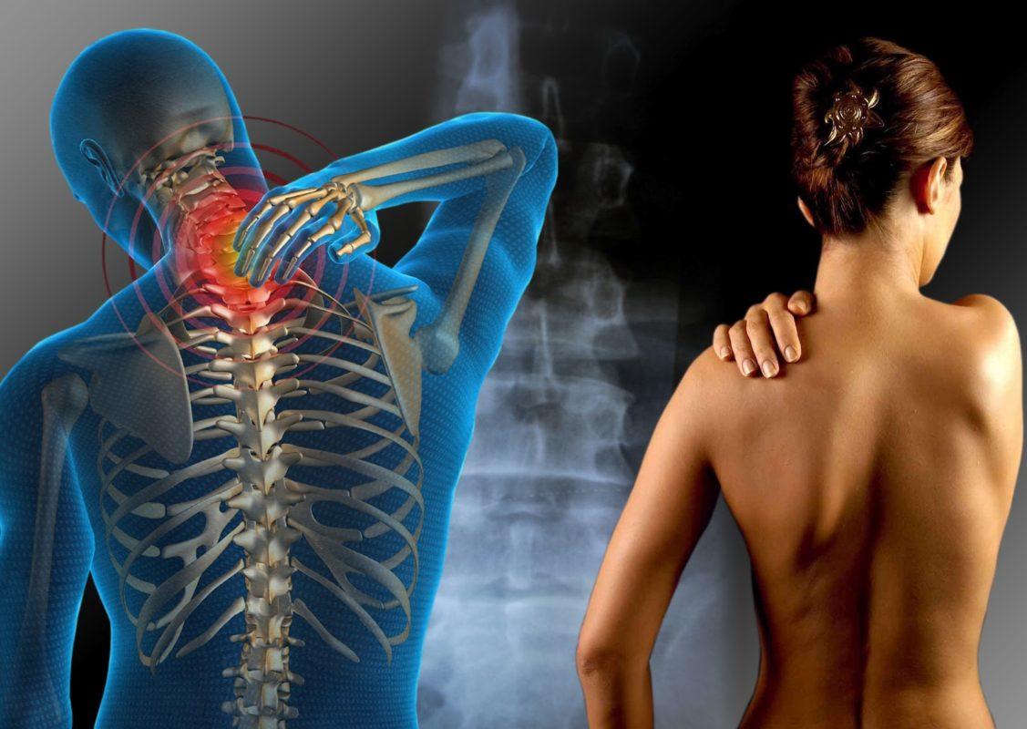 Fibromialgia: ¿En qué ayuda la Apiterapia?