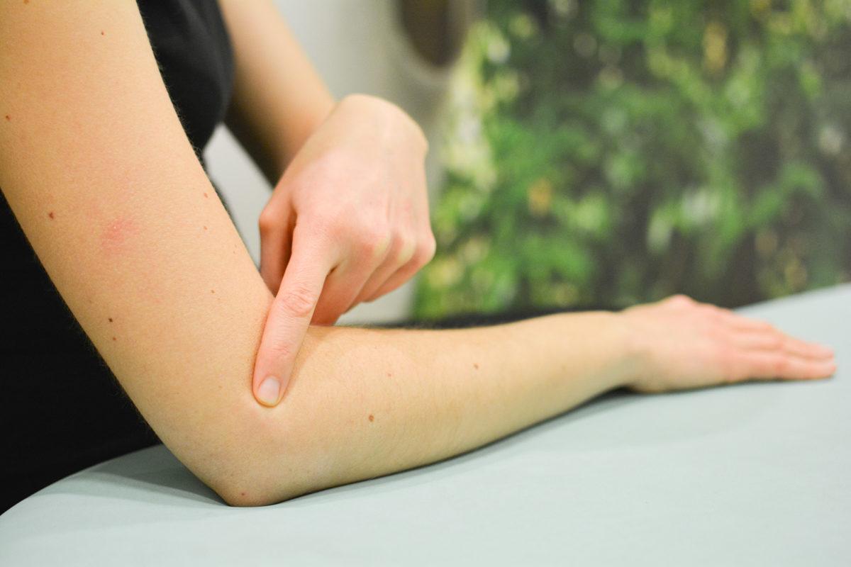 Psoriasis: ¿En qué ayuda la Apiterapia?