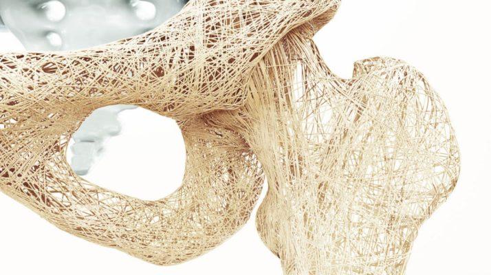 Osteoporosis: ¿En qué ayuda la Apiterapia?