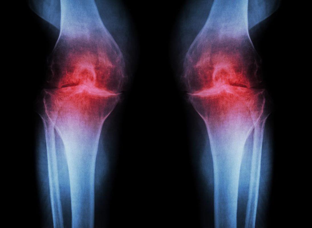 7 pasos para controlar la artrosis con la apiterapia