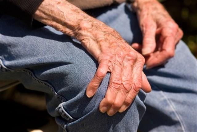 5 recomendaciones para manejar la artrosis